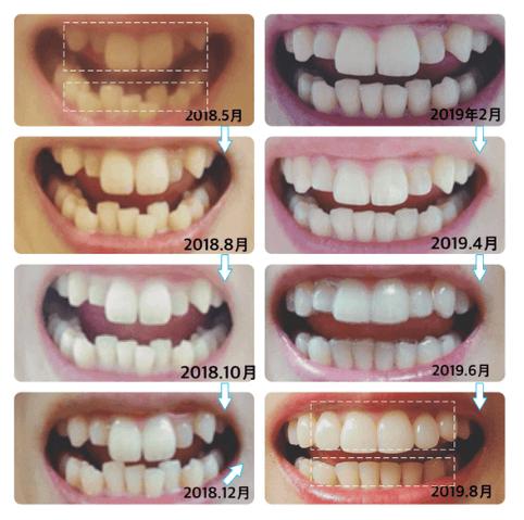 キレイ ライン 矯正 キレイライン矯正【公式】|2万円から始められる歯科矯正